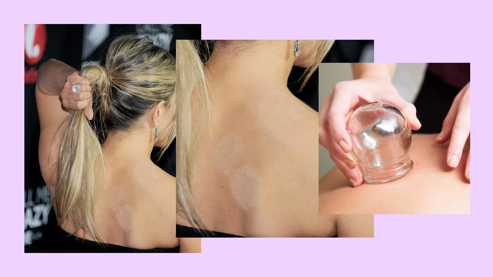 Face Cupping